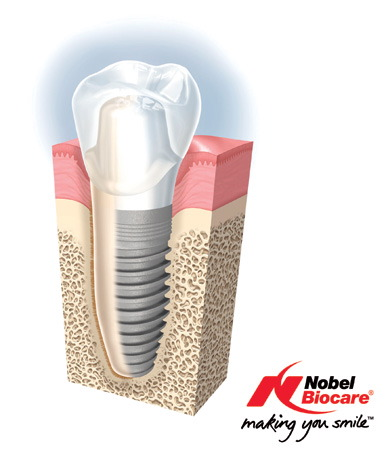 SnS_E_Tech_Dental_Nobel