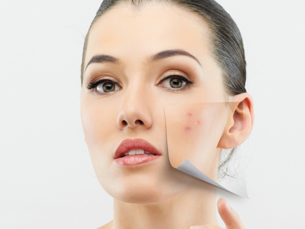 Acne & Other Scars Reduction