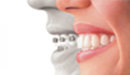 Invisible/ Lingual braces
