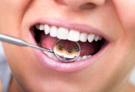 Invisible/ Lingual braces