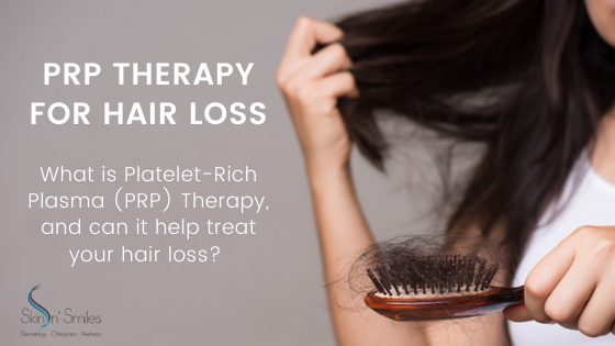 What Is PRP Therapy and Does It Really Help Treat Hair Loss?