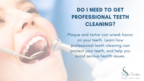 Do I Need To Get Professional Teeth Cleaning?